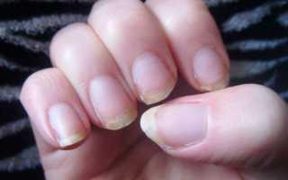 Как сохранить здоровье ногтей во время беременности