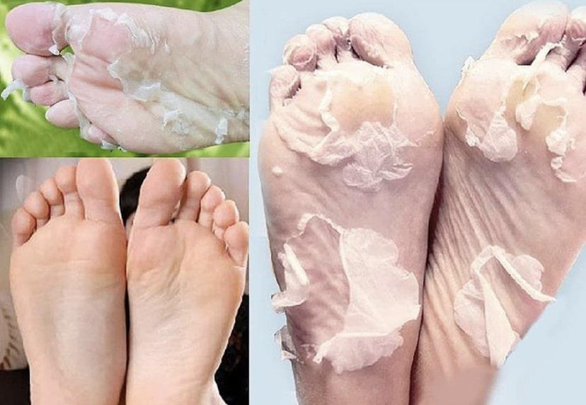 До и после использования китайских педикюрных носков