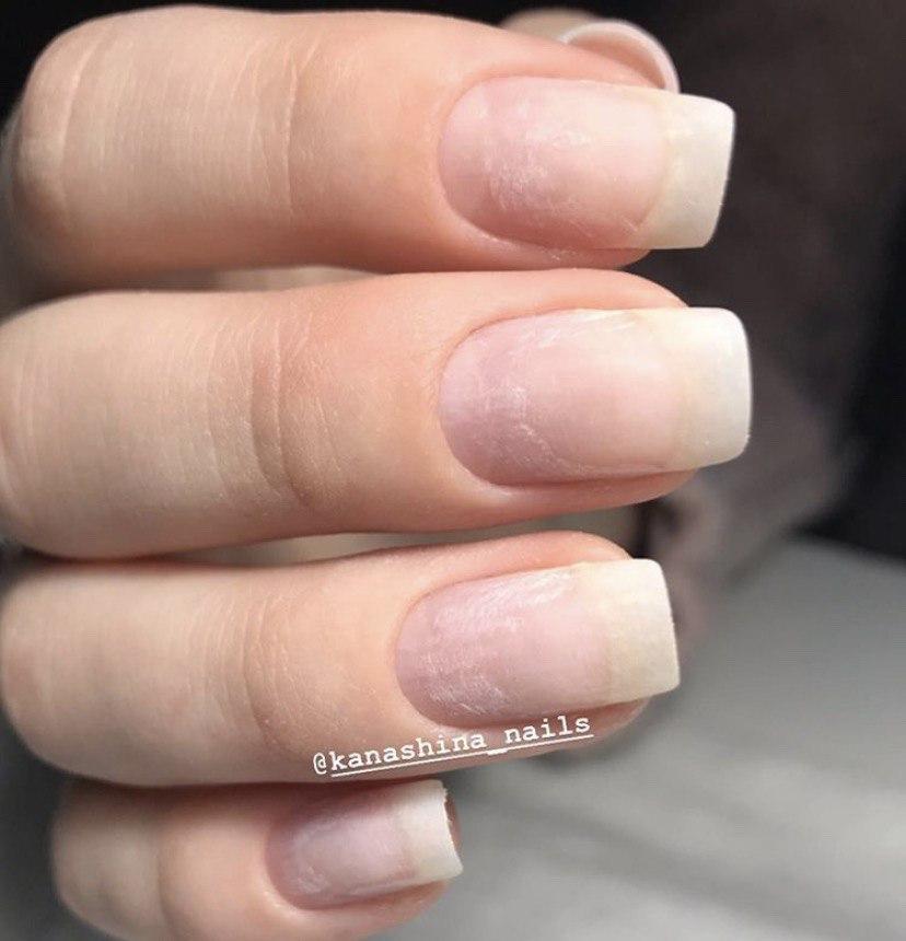 Обработанные маникюром ногти с пересушенной пластиной
