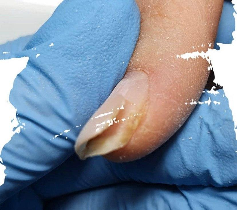 Почему отслойки на ногтях