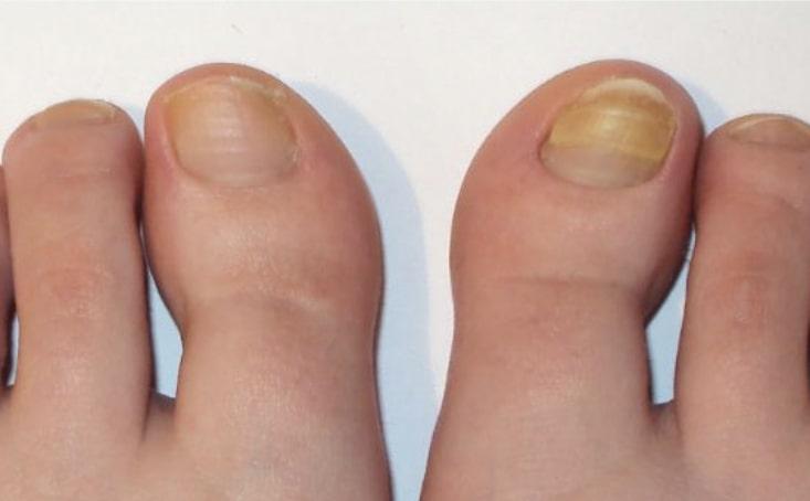 Пример грибка ногтя