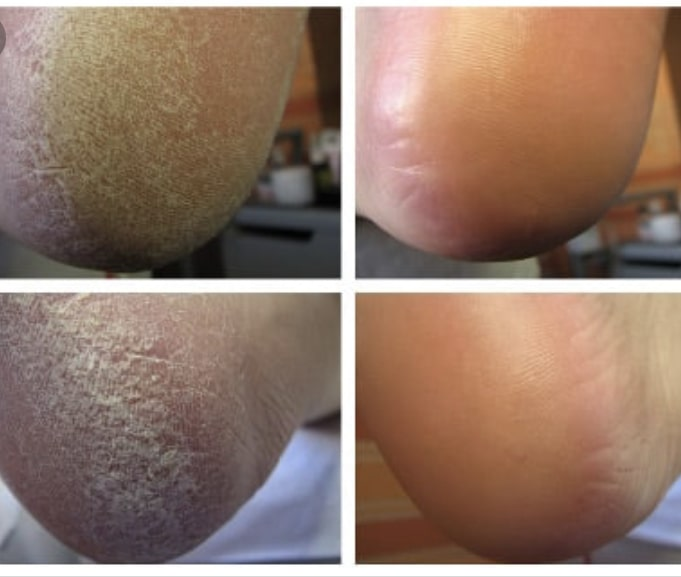 Стопы до и после кислотного педикюра