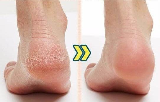 Вид пяток до и после применения носочков