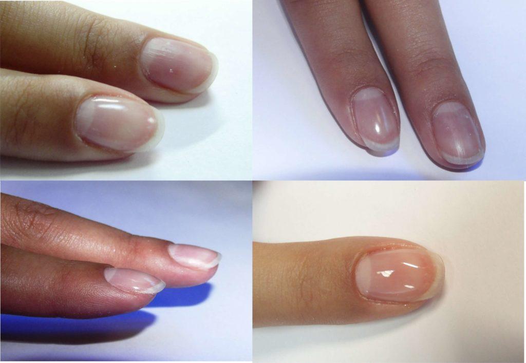 Инструкция по укреплению ногтей биогелем
