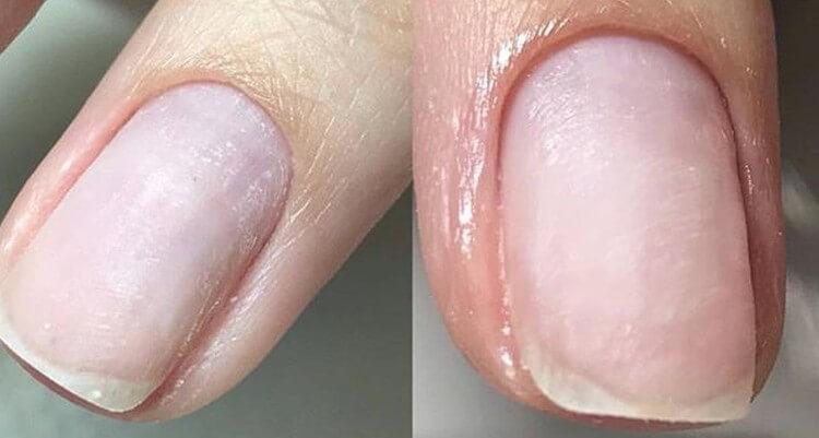 Причины сложностей при срезании кутикулы фрезой
