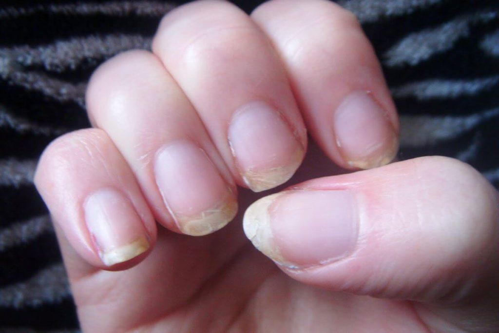 Изменения ногтей при беременности