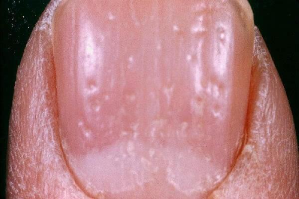 Ямки или дырочки на ногтях причины и лечение