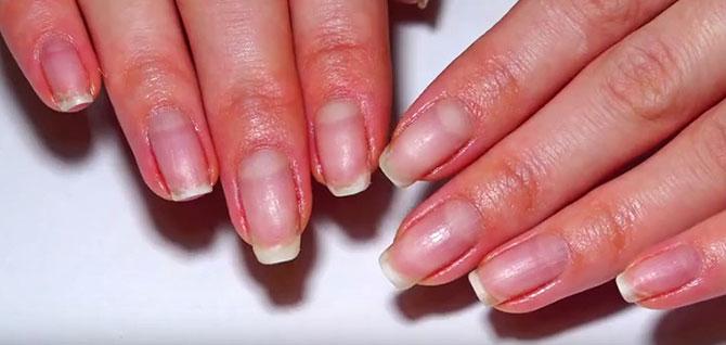 ногти после снятия акрила