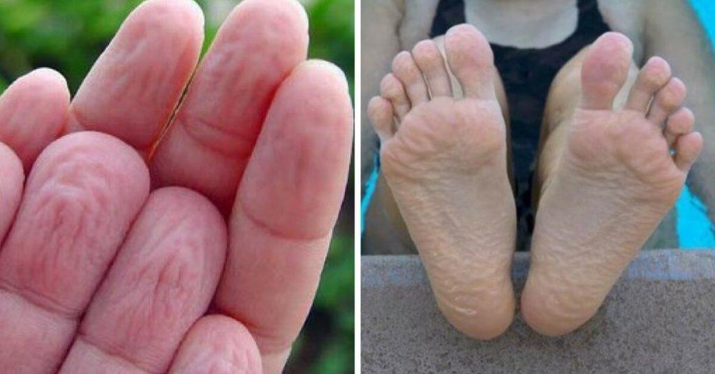 Как выглядит гипергидроз ног
