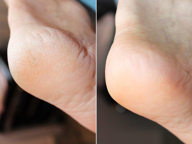 Кератолитик для ног - до и после использования