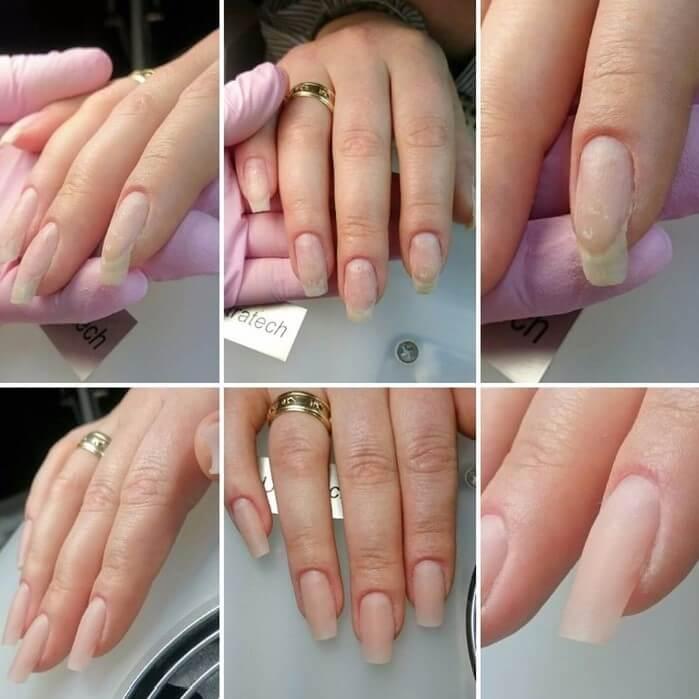 Работа с клюющими ногтями