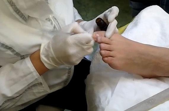 Медицинский педикюр в клинике