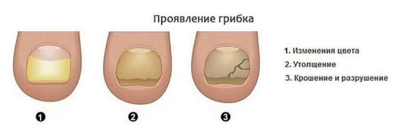 Симптомы онихомикоза