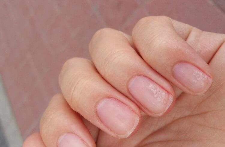 Какие бывают проблемы с ногтями