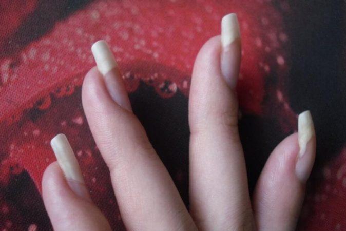 Причины онихолизиса - отслоения ногтей