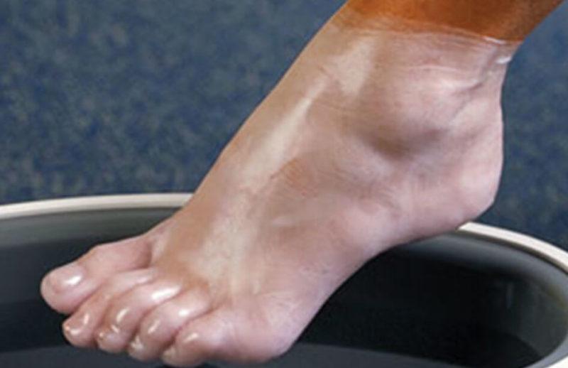 Рекомендуемая периодичность парафинотерапии для ног