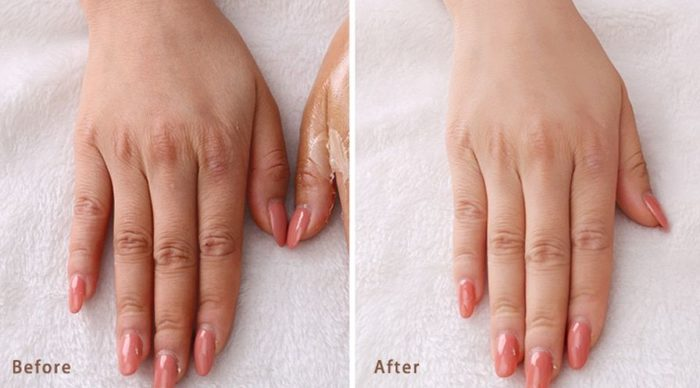 Руки до и после парафинотерапии