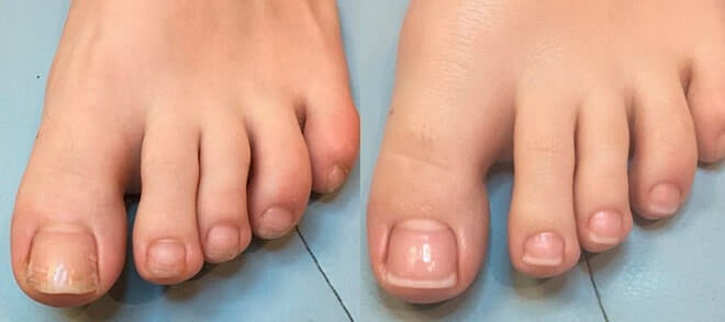 Ногти до и после применения электропилки