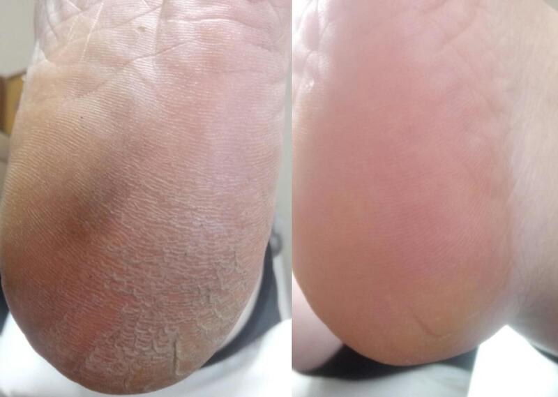 До и после использования роликовой пилки Шолль