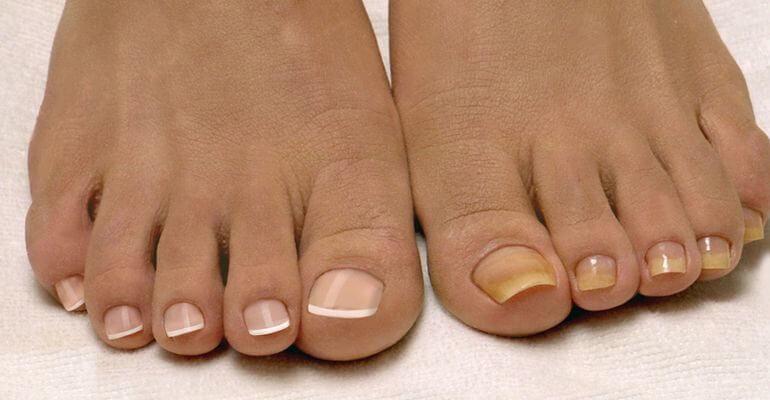 Как ухаживать за ногтями летом
