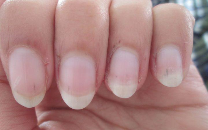Проблемы с ногтями, близкие сосуды