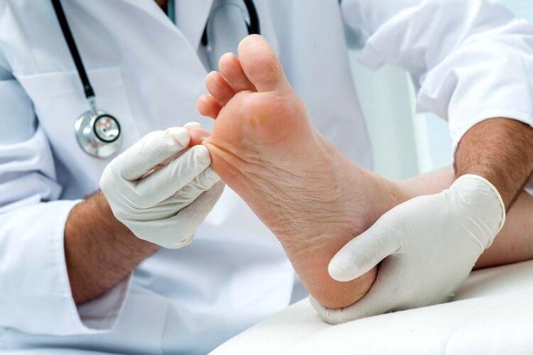 Какие бывают проблемы со стопами и кожей стоп