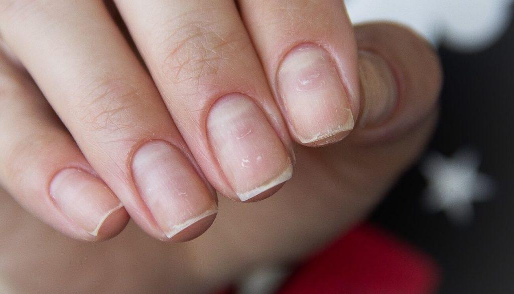 Что делать с пропилами ногтей после маникюра