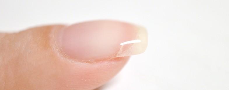 Пример ремонта ногтя файберглассом