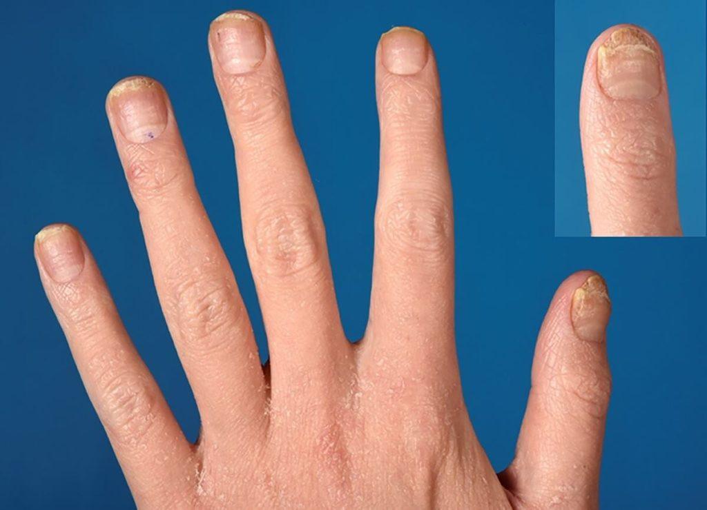 Симптомы аллергии на маникюр