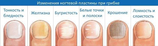 Изменение ногтевой пластины при грибке