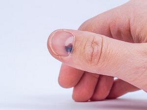 Гематома на ногте