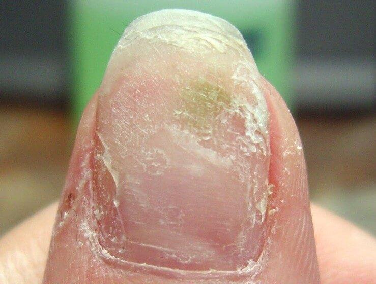Спиливание части ногтя