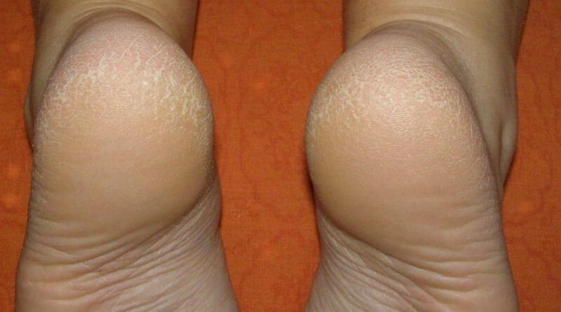 Как увлажнить сухую кожу ног летом