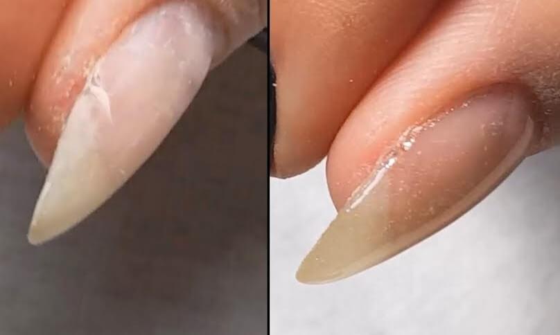 Растрескивание, трещины на ногтях как избавиться