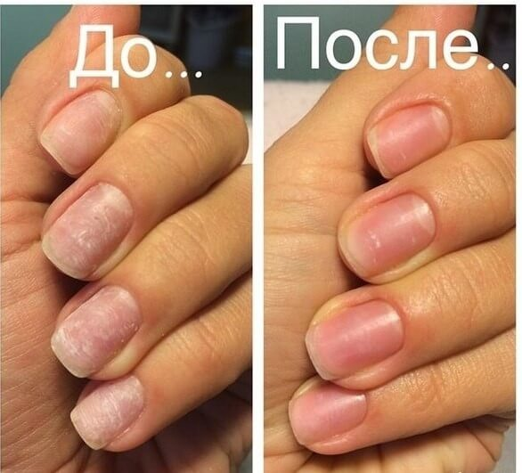 Укрепление ногтей биогелем до и после