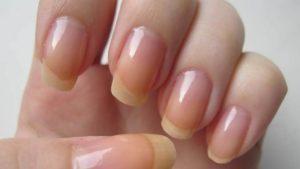 Заболевания ногтей, как причина отслаивающегося материала