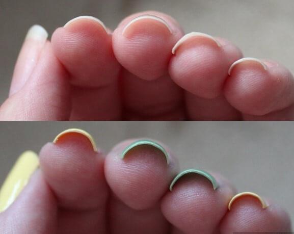 Ногти закручивающиеся от лака
